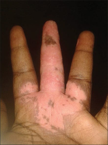 Recalcitrant finger ulcer in HIV patient