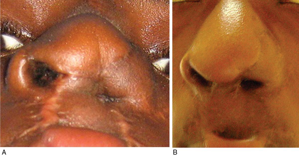 Experience with management of nasal defects Oladele AO, Olabanji JK